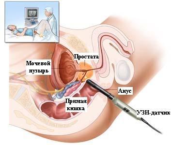 УЗИ диагностика предстательной железы